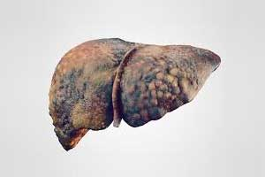 Researchers identify new strains of hepatitis C in Africa