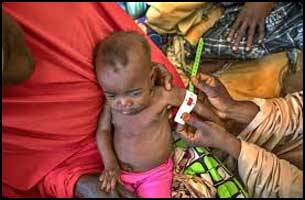 91% of children in India battle against malnutrition- NITI Aayog