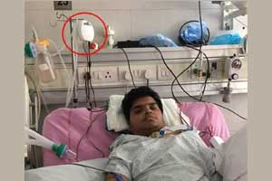 AIIMS team develops smallest ventilator costing only Rs 35,000!