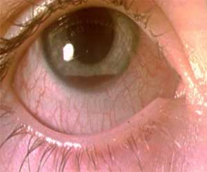 Traumatic Iridodialysis-The man reported collapsed iris after trauma