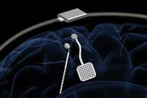 Now 'Brain pacemaker ' to treat Epilepsy, Parkinson's