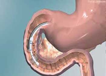 Novel same day minimally invasive procedure to prevent diabetes progression
