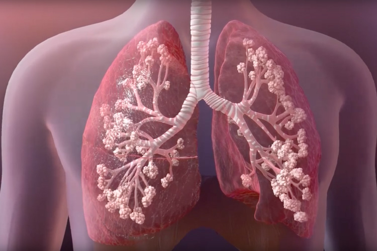 New intra-nasal imaging tool developed to understand airways in cystic fibrosis patients