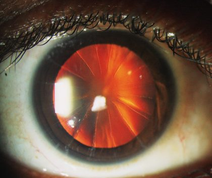 Patient's cornea looked like spoke of bicycle- a case report
