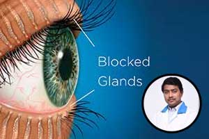 Dry Eyes?? Do not ignore, it could be a sign of thyroid disorder and meibomian gland dysfunction