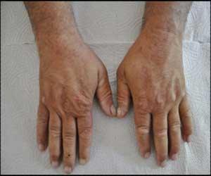 Rare case of Porphyria cutanea tarda: a report