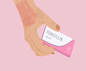 9 out of 10 patients who think they have penicillin allergy, probably don't have it