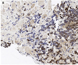 Rare case of Cardiac Metastasis of Malignant Melanoma