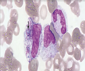 A case of disseminated histoplasmosis in patient with HIV infection: NEJM