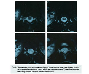Rare Case of Epstein-Barr virus myelitis in immunocompetent individual: JAPI
