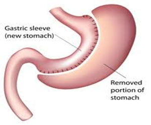 Sleeve gastrectomy safer than Gastric bypass for patients of Crohn
