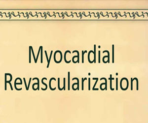2018 ESC/EACTS Guidelines on Myocardial Revascularization released