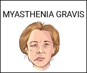 Zilucoplan - A promising treatment for myasthenia gravis