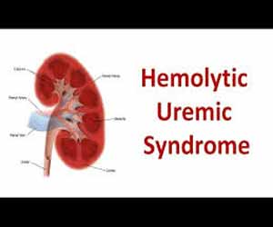 Haemolytic Uremic Syndrome Revisited