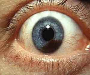 Case of Metastatic Uveal Melanoma reported in NEJM