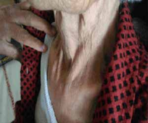 Case of Hematoma of Sternocleidomastoid: Aspirin can be a Cause