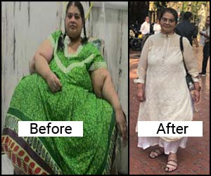Indian doctors help Asia's heaviest woman lose 214 kgs through weight loss surgery