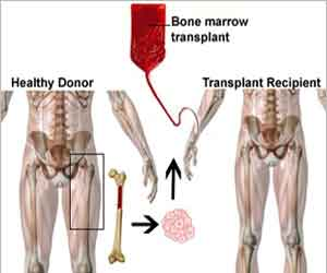 Its time to demystify Bone Marrow Transplant Therapy- Dr Rahul Bhargava