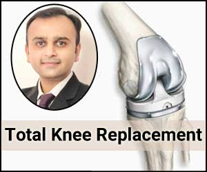 Total knee replacement: Are there any alternatives?