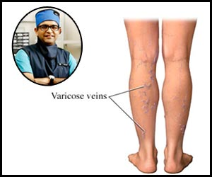 Treating varicose veins with laser treatment- Dr Bhavesh Arun Popat