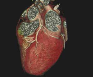 In which cases of CAD, accuracy of Coronary CT Angiography is highest, finds study