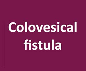 An Uncommon Case of  Colovesical Fistula