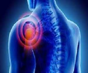 Guidelines on decompressive surgery for nontraumatic Subacromial Shoulder Pain