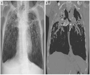 Rare occurrence of chronic silicosis with progressive massive fibrosis: NEJM case report