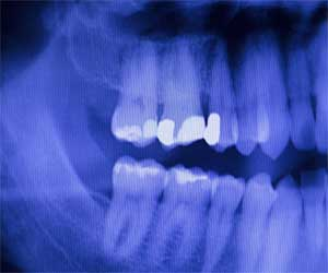 How a genetic defect leads to discolored,weak enamel unfolds new study