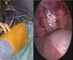 Rare case of isolated congenital inter-costal pulmonary hernia: a report