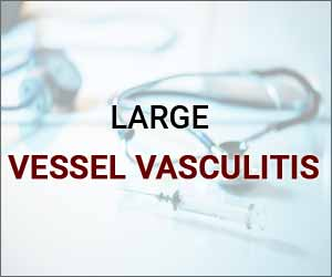 EULAR updates guidelines for the management of large vessel vasculitis