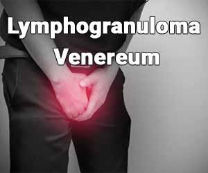 2019 European guideline on the management of lymphogranuloma venereum