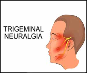 Diagnosis and management of trigeminal neuralgia: EAN Guideline