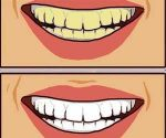 Is Doxycycline associated with tooth discoloration in Children?