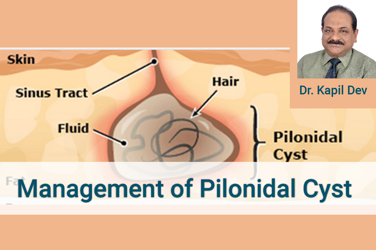 PILONIDAL SINUS, an agonising and discomforting disease- Dr Kapil Dev