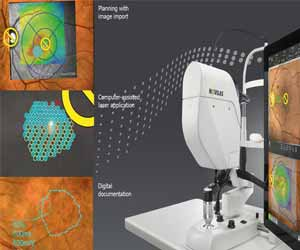 Navigated retinal laser therapy more effective than conventional slit-lamp lasers