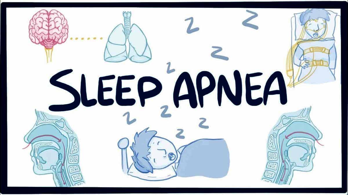 Hypoglossal nerve stimulation may improve sleep quality in sleep apnea patients: JAMA