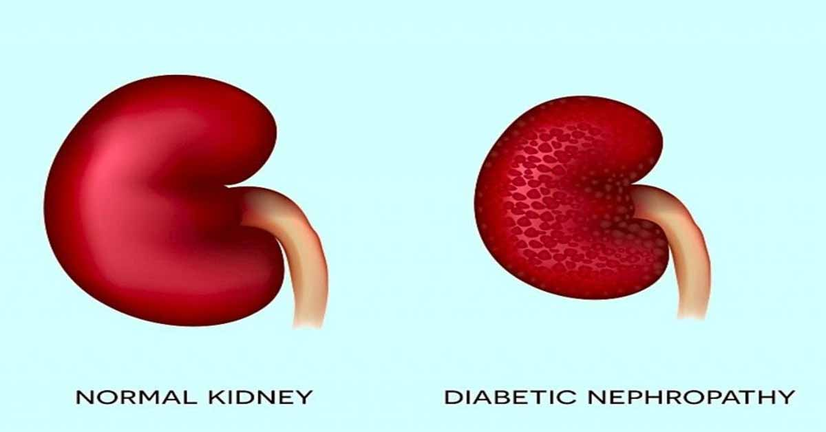 Elevated hs-CRP ups risk of diabetic nephropathy in diabetes patients: Diabetes Care
