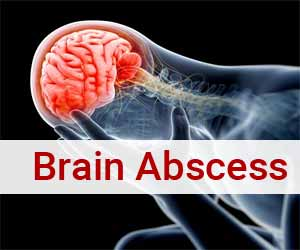 AIIMS Antibiotics Policy for treating Brain Abscess