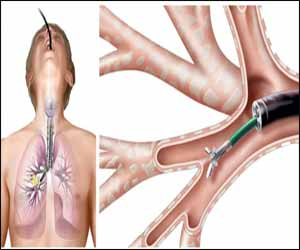 Diagnostic Flexible Bronchoscopy in Adults: Indian Guidelines