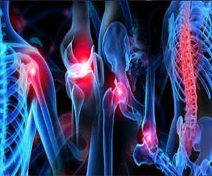 Pain reduction: Paracetamol as good as combo drugs in acutemusculoskeletal injuries