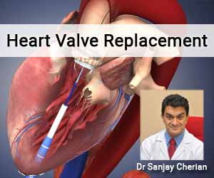 Latest R&D and Technological Developments in Heart Valve Replacement