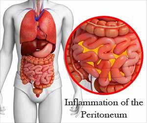 AIIMS releases guidance on Antibiotics in Peritonitis