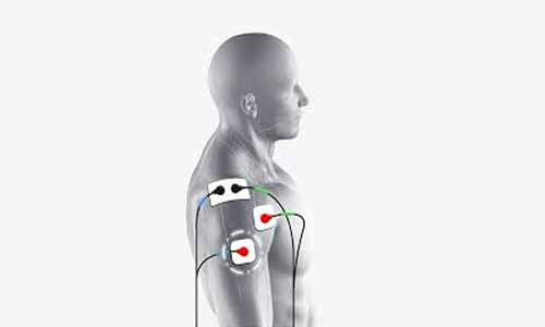 FDA clears Medactas MyShoulder placement guides