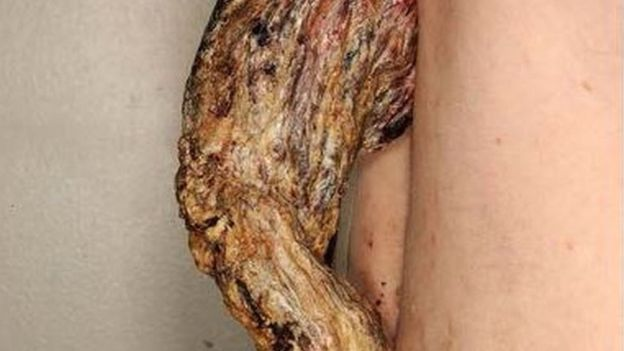 "Doctors remove five-inch long cancerous ""dragon horn"" from back of patient"
