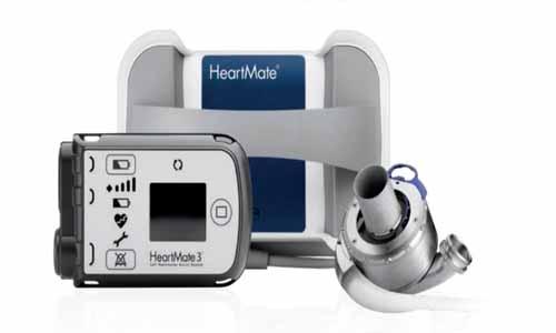 FDA approves less invasive HeartMate 3 implantation technique