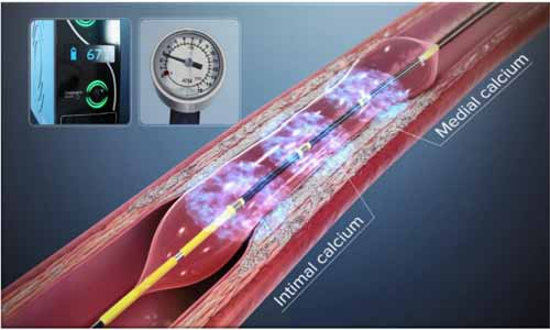 Fortis Escorts Cardiologists perform first Coronary Shockwave Lithotripsy to open blocked artery